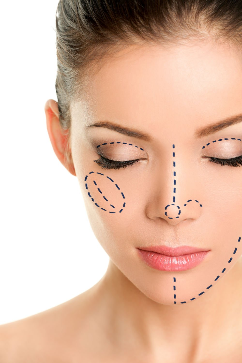 Things You Need to Know About Cosmetic Surgeries