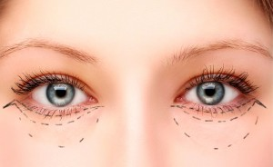 Blepharoplasty Cancun