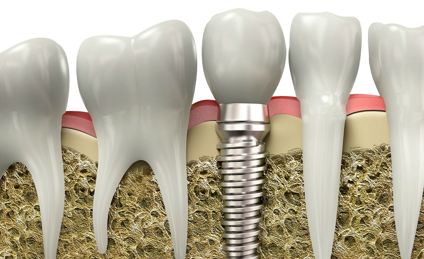 Dental implants all on 4
