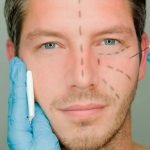 face lift for men big picture