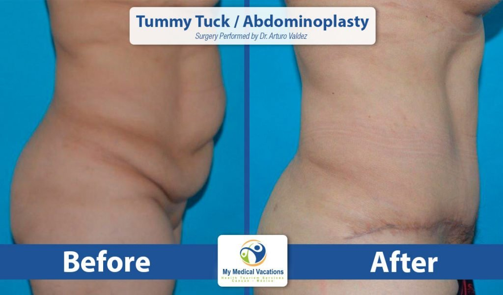 tummy tuck abdominoplasty before after stand 2