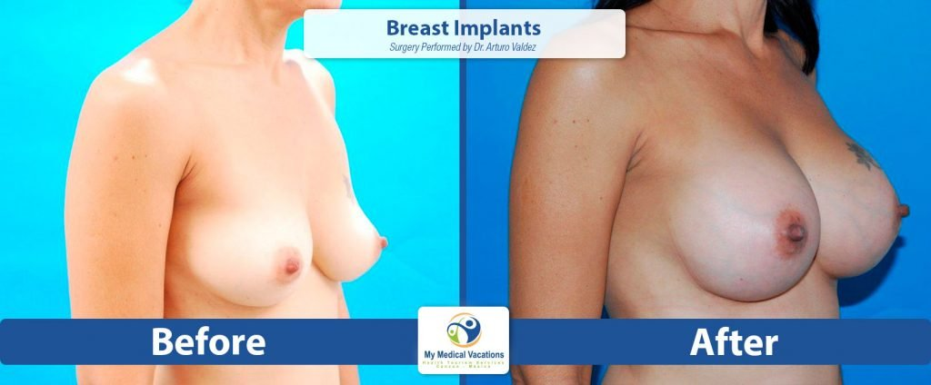 breast implants before after 2