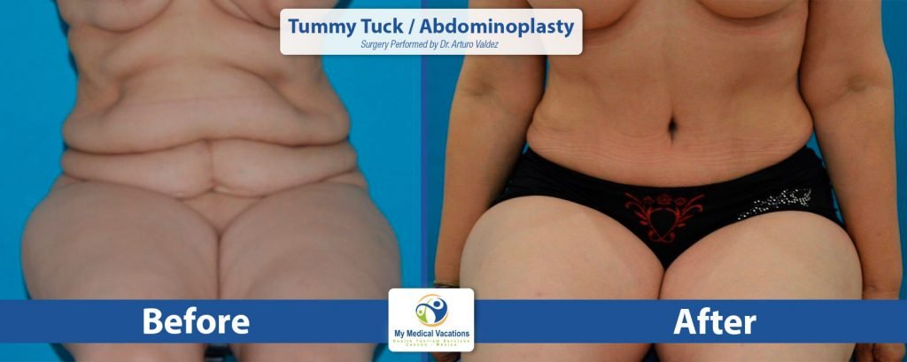 tummy tuck abdominoplasty before after 2