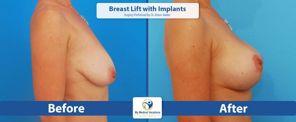 breast lift implants before after