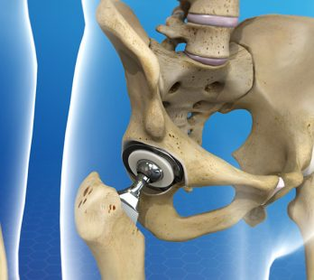 Hip Replacement Surgery In Cancun