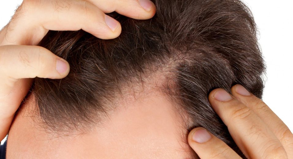 Hair Restoration Cancun