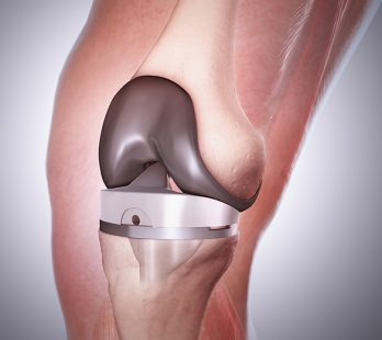 knee replacement in mexico
