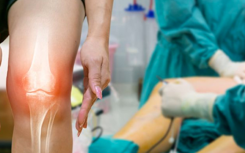 MOV ACL Repair Surgery Get in the or in less than 30 days