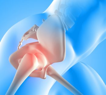 HIP JOINT REPLACEMENT IN CANCUN AND ITS BENEFITS